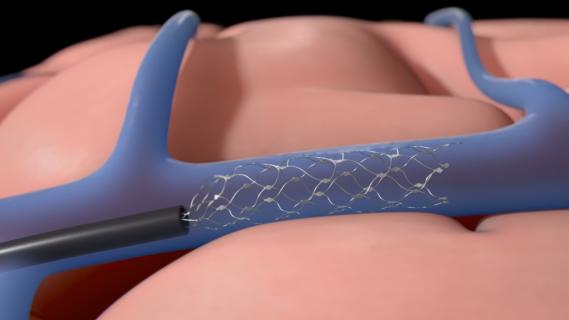 Nowy implant nerwowy połączy się z mózgiem poprzez żyłę szyjną